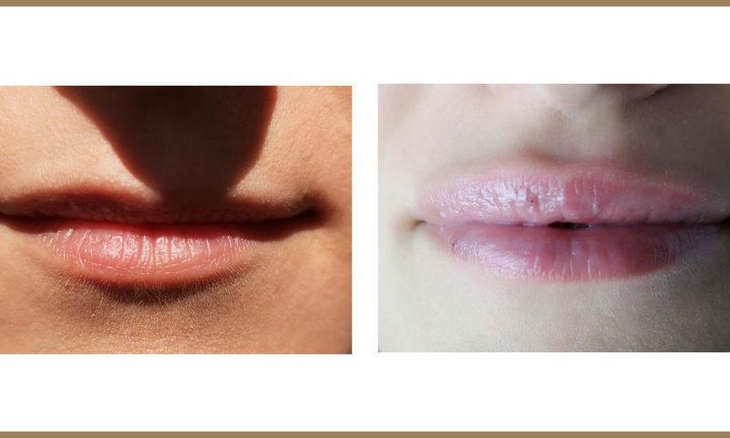 Jak zadbać o usta latem?
