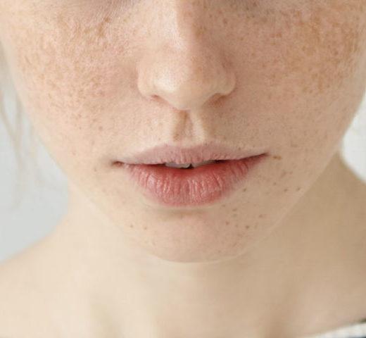 Przebarwienia, skuteczna walka w Preibisz Skin Doktors